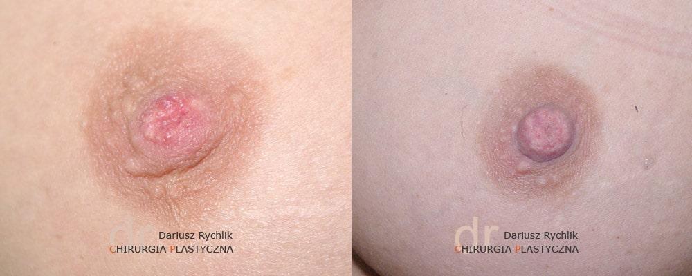 Korekcja wciągniętych brodawek - Operacja - Chirurgia Plastyczna Polanica - Chirplast
