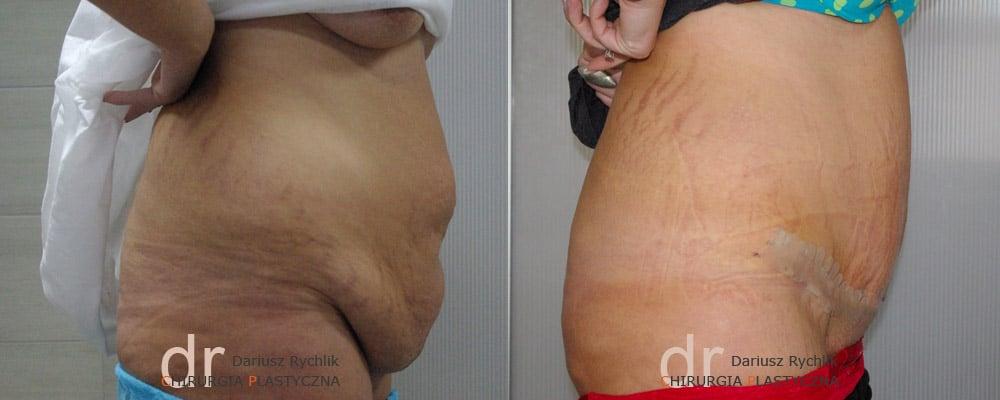 Plastyka Brzucha - Chirurgia Plastyczna Polanica