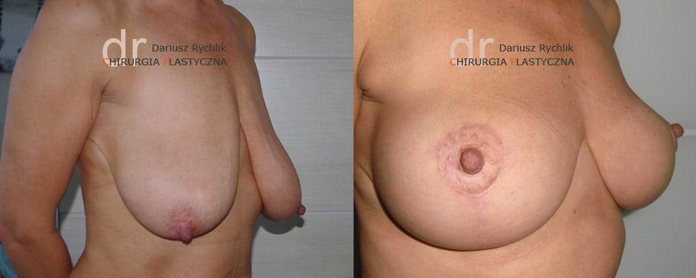Zmniejszenie, redukcja piersiOperacja - Chirurgia Plastyczna Polanica - Chirplast