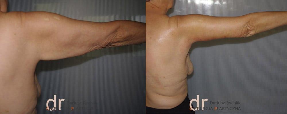 Plastyka obwisłej skóry ramion