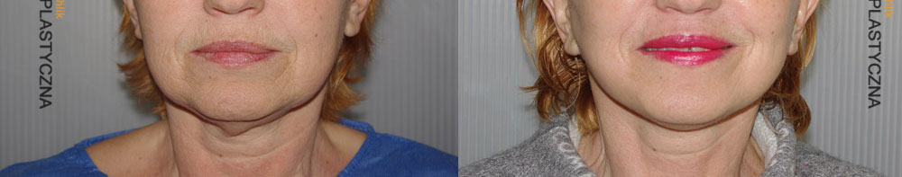Plastyka twarzy i szyi Face Lifting - Operacja - Chirurgia Plastyczna Polanica - Chirplast
