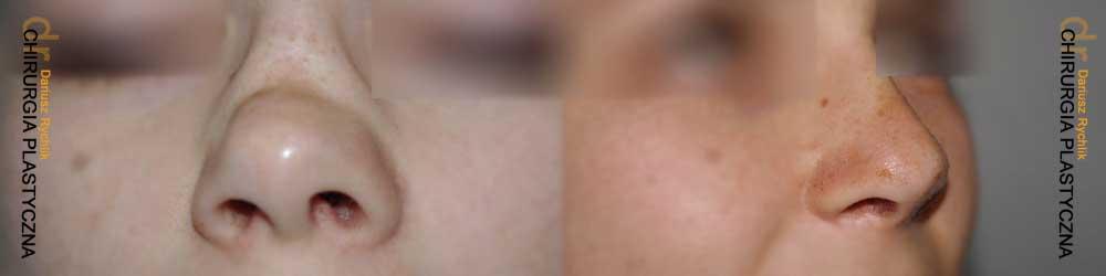 Plastyka uszu - Operacja -Chirurgia Plastyczna Polanica - Chirplast