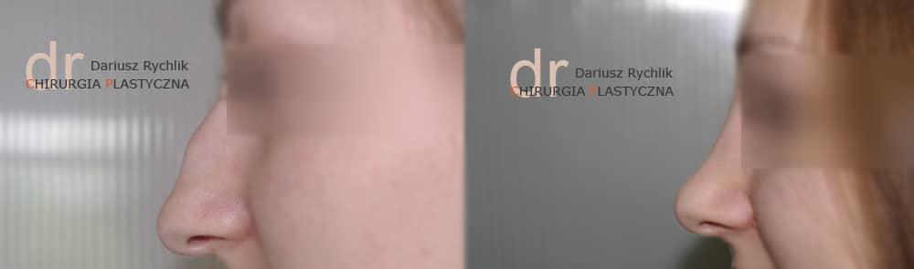 Plastyka nosa Polanica Chirplast