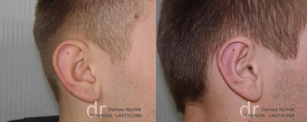 plastyka zabiegi uszu polanica chirplast