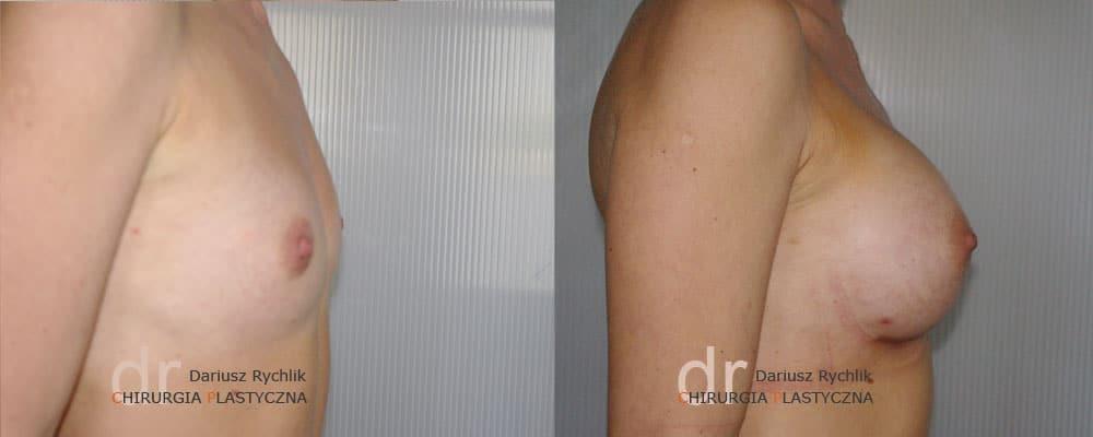 Powiększanie Piersi - Operacja biustu - Chirurgia Plastyczna Polanica